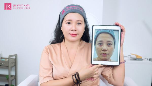 ảnh trước và sau khi sử dụng dịch vụ siêu trẻ hóa tại JK Việt Nam