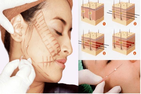 Kỹ thuật căng da bằng chỉ