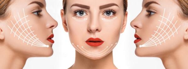 căng chỉ da mặt giúp tái tạo da