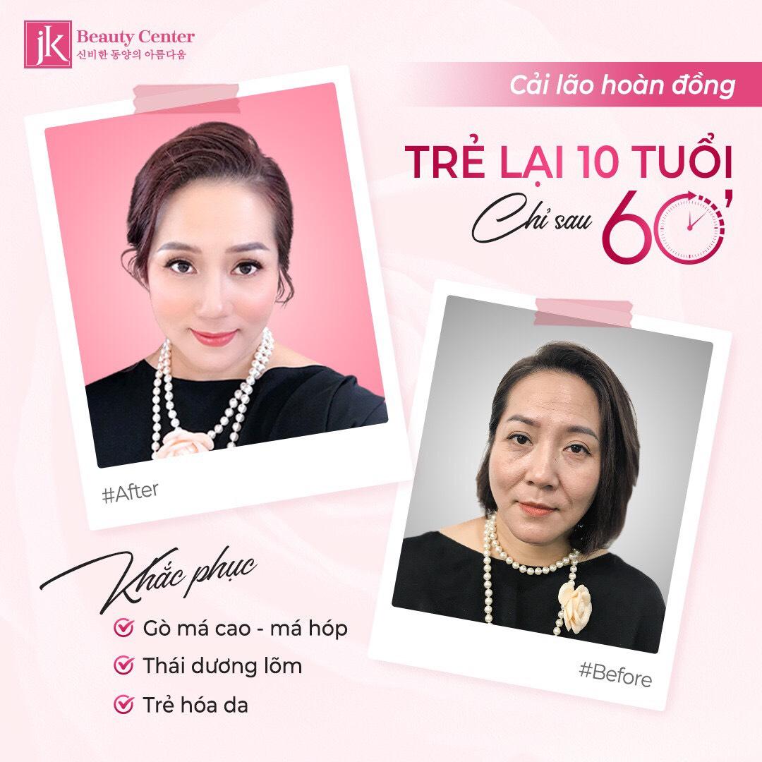Hình ảnh khách hàng sau khi sử dụng dịch vụ Cải lão hoàn đồng tại JK Việt Nam