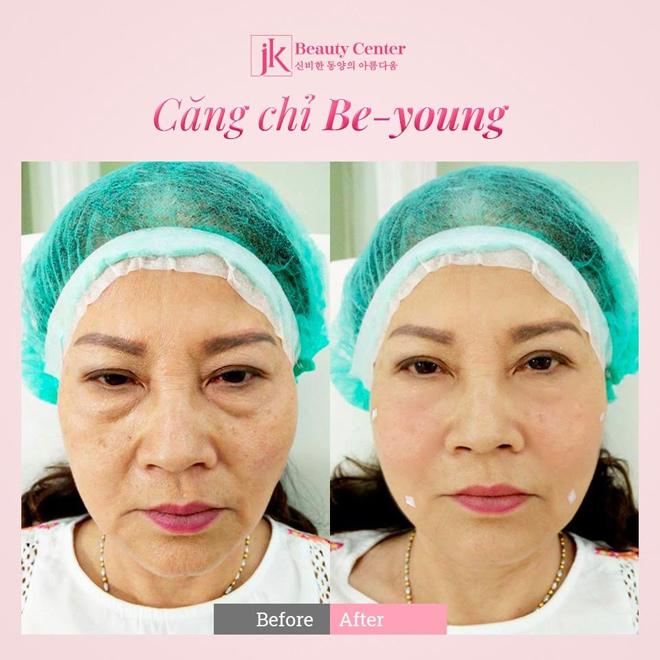 khách hàng sử dụng dịch vụ căng chỉ Be-young tại JK Việt Nam