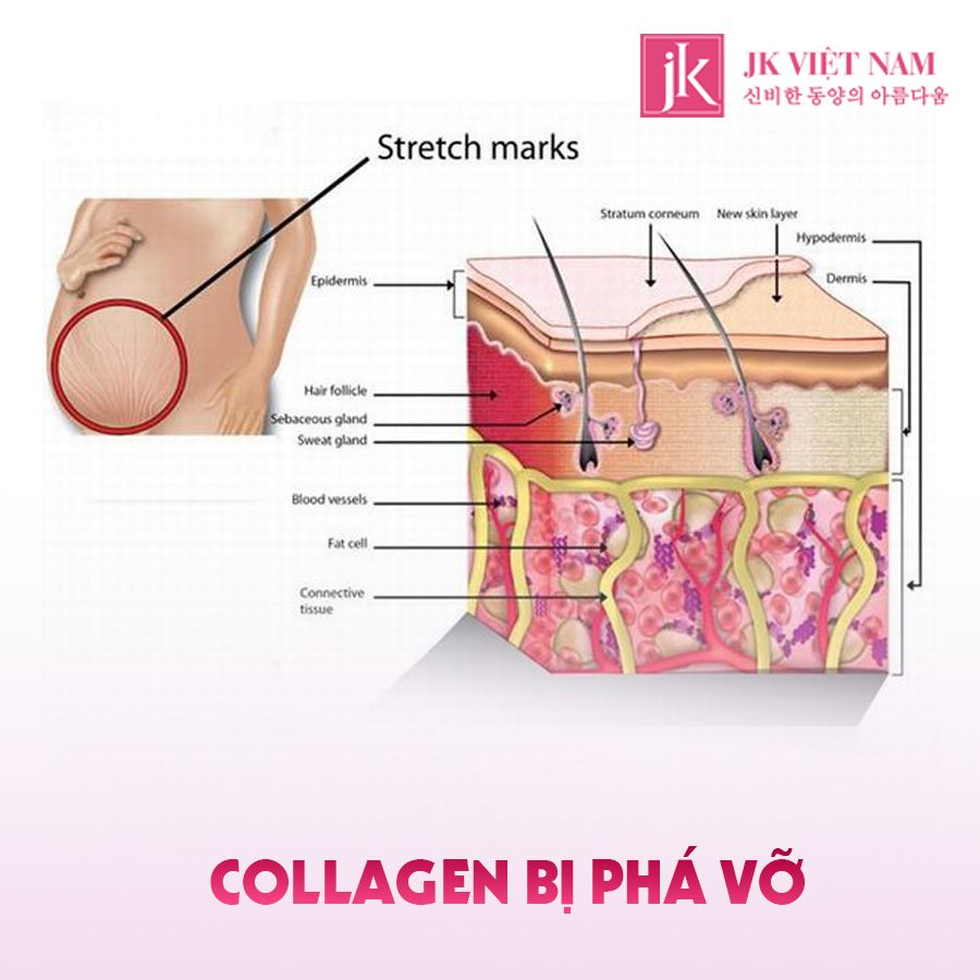 Collagen bị phá vỡ