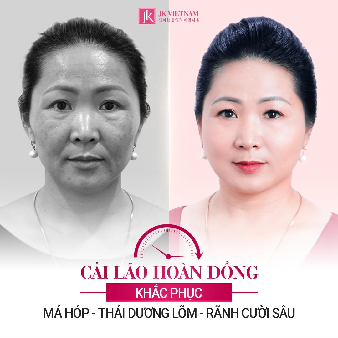 Ảnh khách hàng sau khi sử dụng cải lão hoàn đồng tại JK Việt Nam