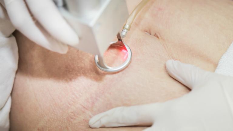 Laser chữa rạn da