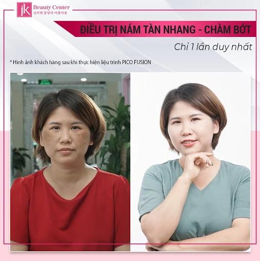 Hình ảnh khách hàng sau khi thực hiện dịch vụ trị nám tàn nhang Pico Fusion tại Jk Việt Nam