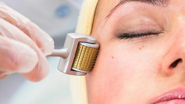 Lăn kim giúp tăng khả năng sản sinh collagen và elastin cho da