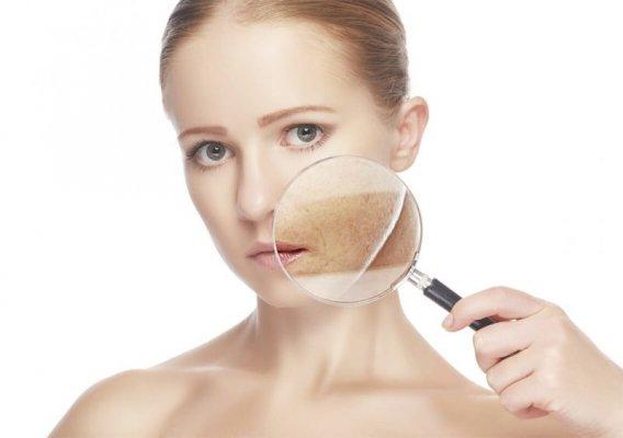 Mức độ hiệu quả của công nghệ trị nám da bằng laser