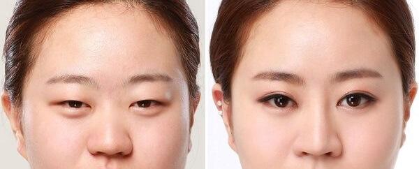 Đôi mắt trở lên to tròn hơn sau khi thực hiện cắt mí mắt
