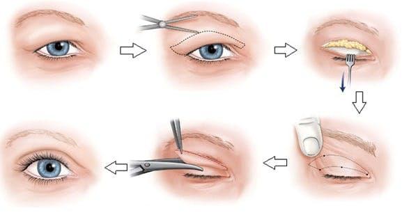 Quy trình cắt mí, lấy lượng mỡ,da dư trên mắt cơ bản