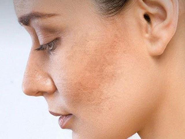 Nám, sạm, tàn nhang cũng làm cho khuôn mặt trông già hơn tuổi