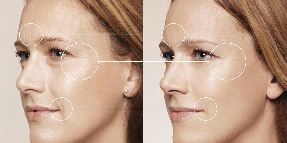 Nếp nhăn xuất hiện ở trán, khóe miệng và mắt