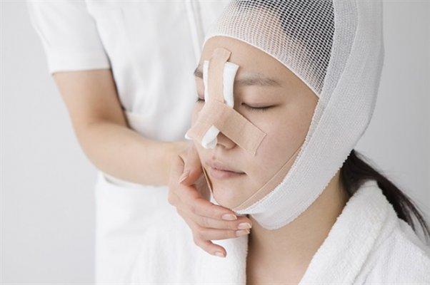 Có nhiều lý do khiến bạn phẫu thuật nâng mũi