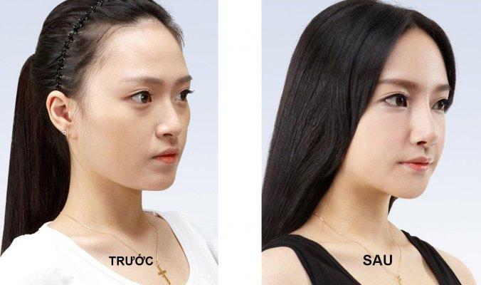 Nâng mũi giúp tổng gương mặt bạn được cân đối, hài hòa