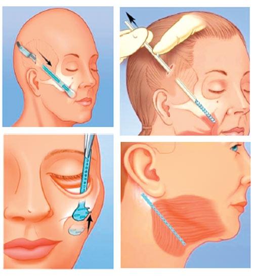 Quy trình căng da mặt nội soi