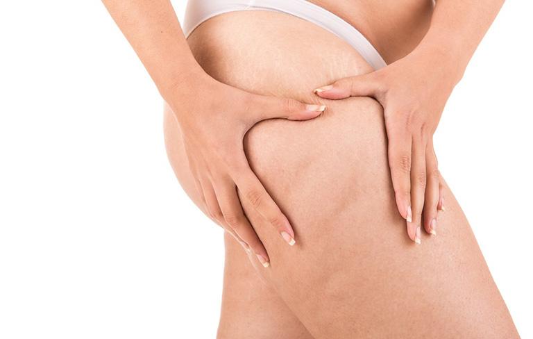 Rạn da đùi do nhiều nguyên nhân gây ra
