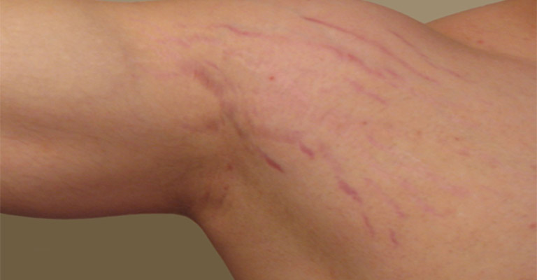 Rạn da có thể xuất hiện khi tập luyện quá mức