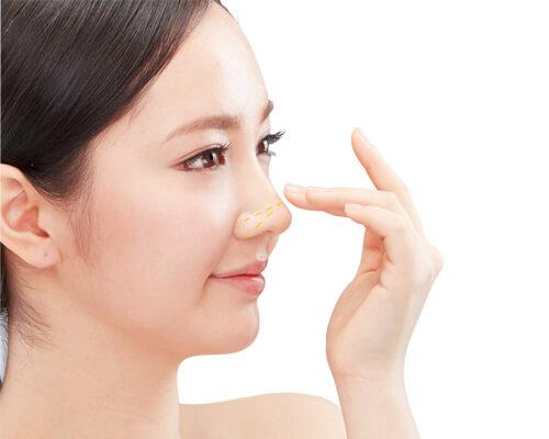 Sau khi tiêm filler mũi đẹp ngay mà không bị sưng nề, không lộ vết tích thẩm mỹ