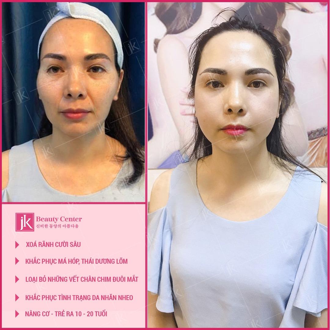Khắc phục ngay khuyết điểm trên khuôn mặt chỉ với 60p với Tái cấu trúc ngoại vi