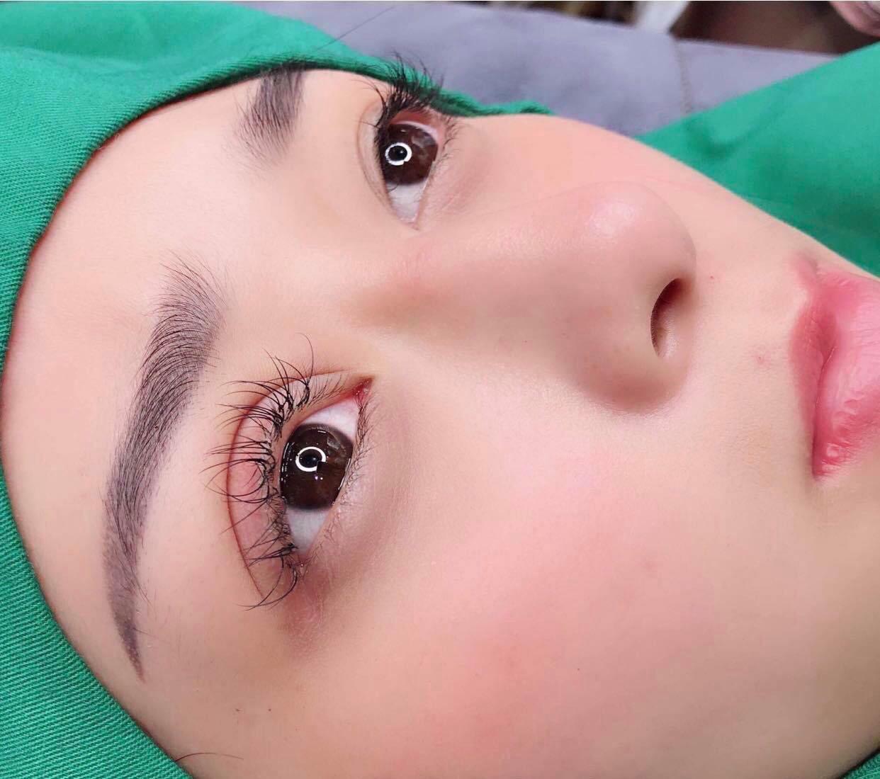 Thực hiện phẫu thuật cắt mí mắt
