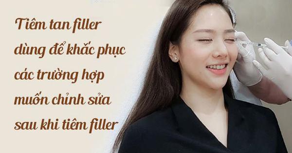 Tiêm tan filler để thực hiện nâng mũi hoặc các điều chỉnh như mong muốn của khách hàng