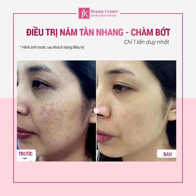 Điều trị nám và tàn nhang tại Phòng khám JK Việt Nam