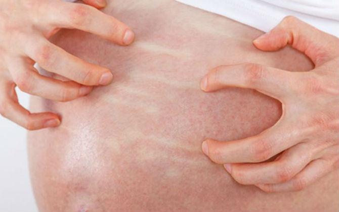 Vết rạn da màu đỏ khi mới hình thành có thể gây ngứa ngáy