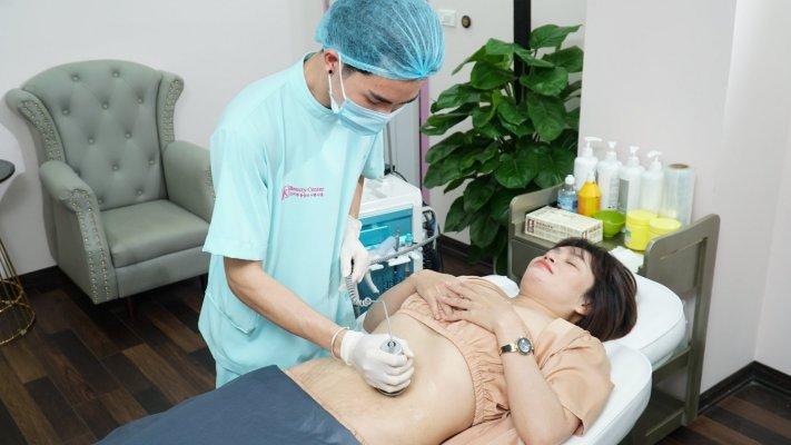 Một khâu trong quy trình trị rạn da với Healing Scar