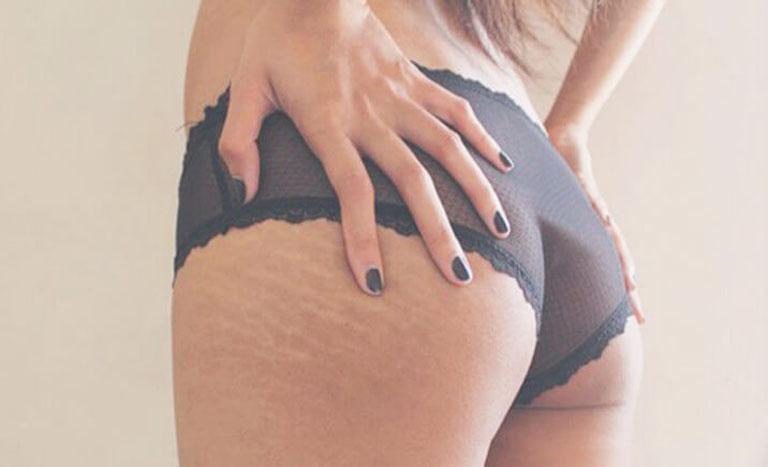 Rạn da mông khiến chị em mất tự tin vì khó diện đồ sexy như ý thích