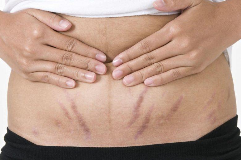 Các vết rạn da màu đỏ xuất hiện trong quá trình sinh nở ở phụ nữ