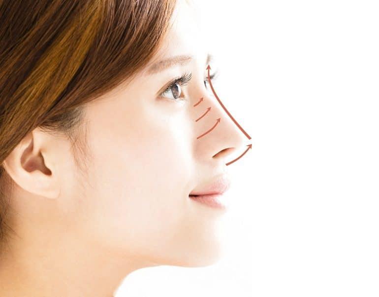 Nâng mũi bằng chỉ rất kén dáng mũi