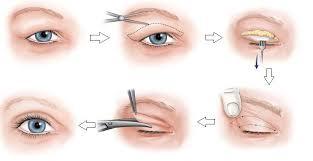 Cắt mí mắt giúp bạn khắc phục khuyết điểm mí lót