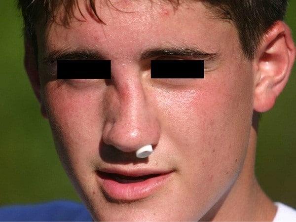 Chấn thương ngoài ý muốn tạo ra gãy sống mũi, không phải mũi gãy như bẩm sinh
