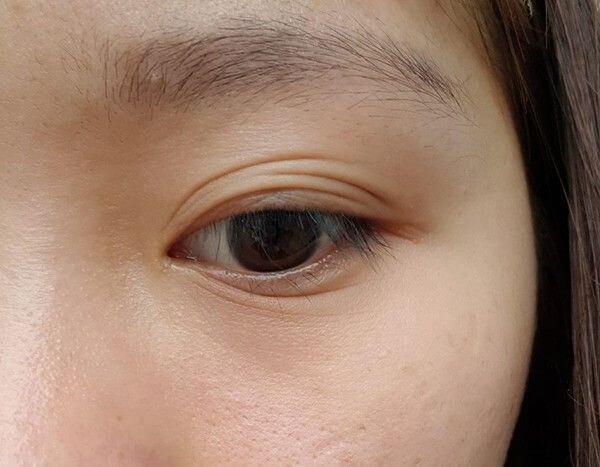 Mắt mí lót gây mất tự tin ở cả nam và nữ