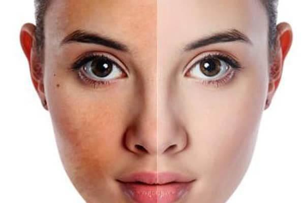 Da bị sạm đen chữa thế nào? Kem dưỡng trắng da là một lựa chọn