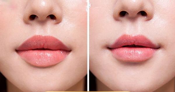 Phẫu thuật thu nhỏ môi như thế nào?