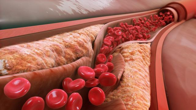 Nguy cơ do mỡ máu cao gây ra
